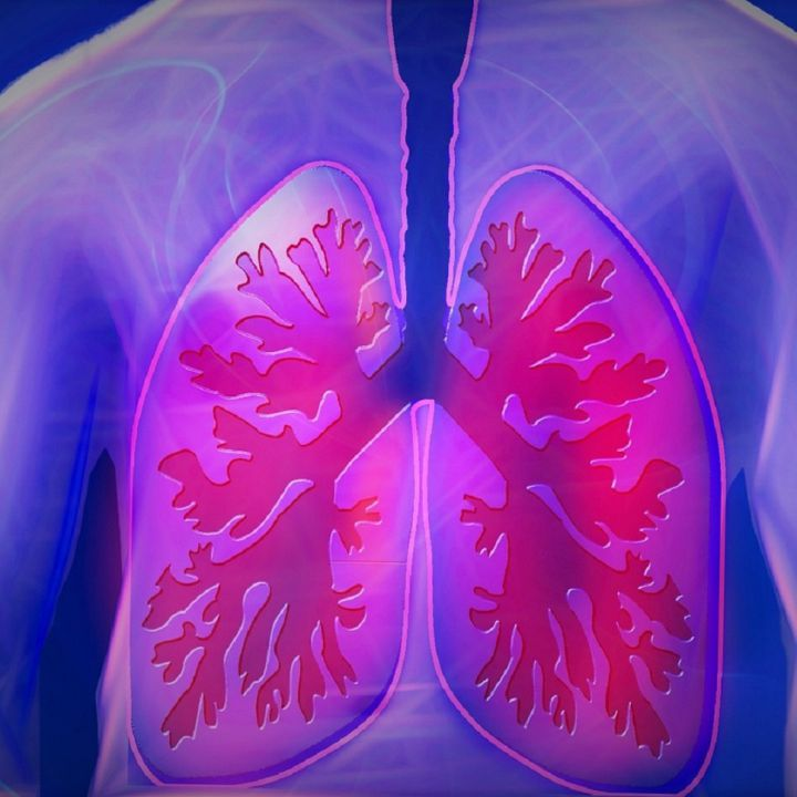 Tecnología que previene cáncer de pulmón con Inteligencia Artificial